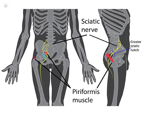 infiltracion hernia discal l5 s1
