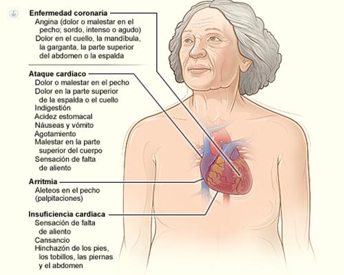 angina de garganta síntomas de diabetes