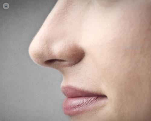 Tabique nasal desviado sin cirugia