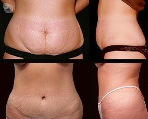 antes y despues abdominoplastia
