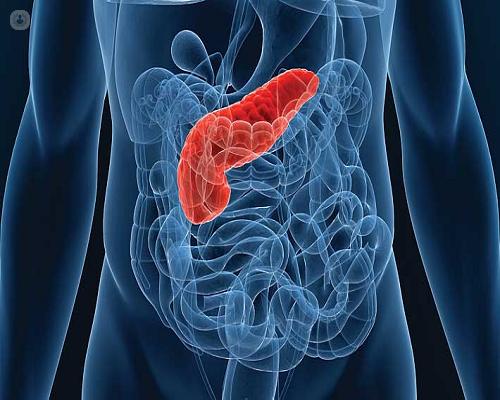 Tipos de cáncer de páncreas y cómo abordarlos