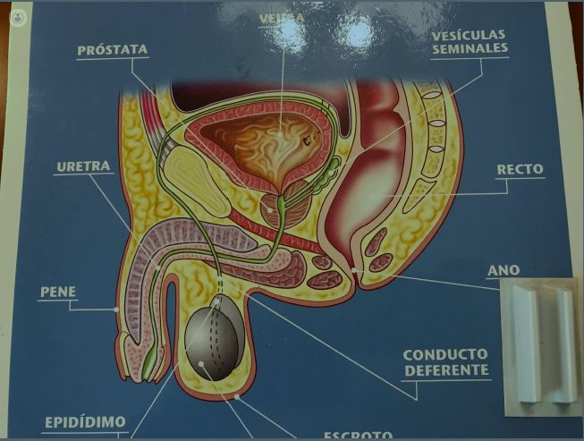 Operacion vasectomia precio