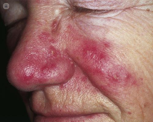 como curar demodex folliculorum