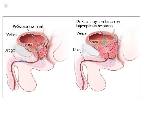 el láser para la próstata