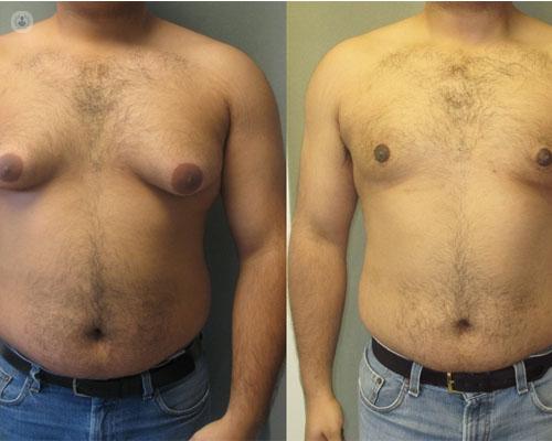 cirugia estetica para perder peso hombre opiniones