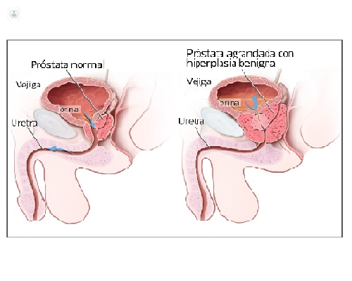 hiperplasia benigna da prostata causa impotencia