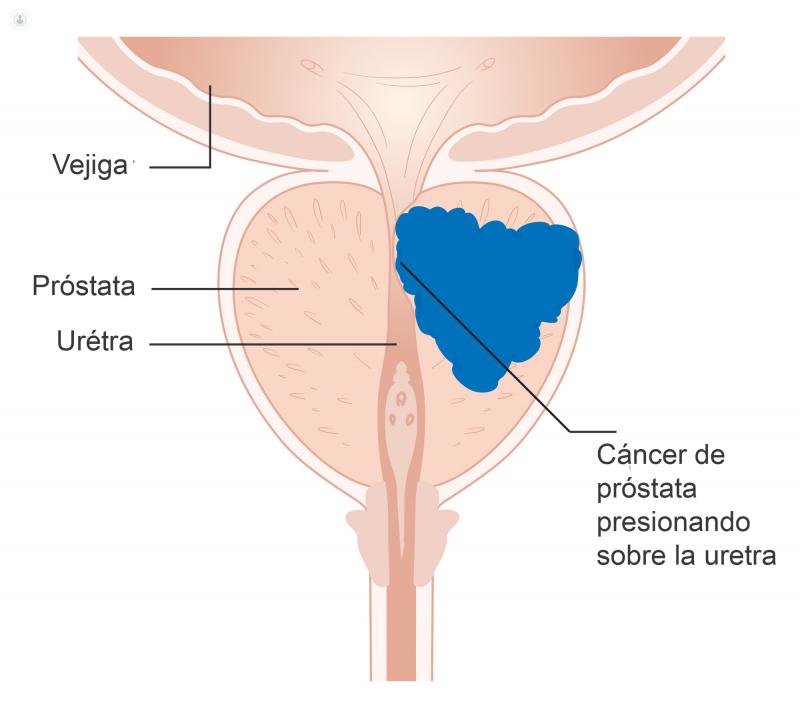 cirugía de cáncer de próstata excelencia en italiano