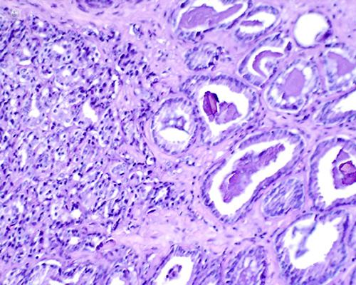 reseccion transuretral prostata postoperatorio