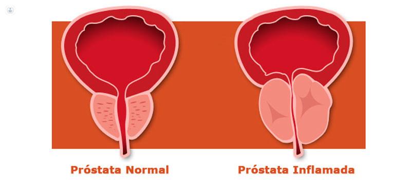 síntomas de prostatitis y libido
