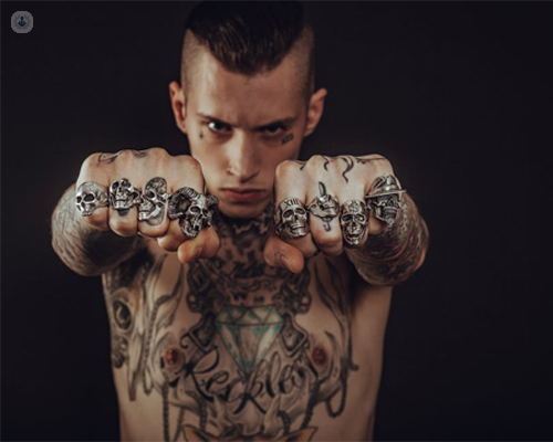 Eliminar Tatuajes Con L 225 Ser