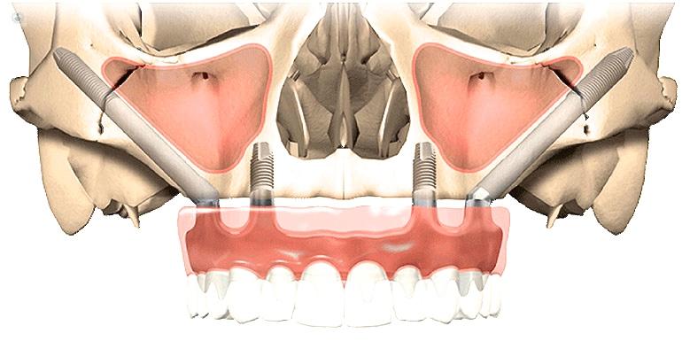 Cuándo recurrir a los implantes cigomáticos | Topdoctors.es