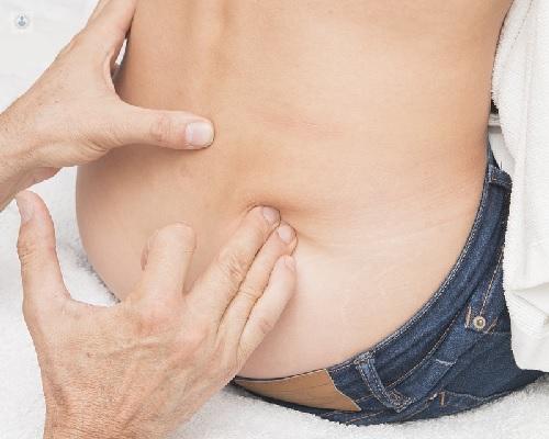operacion de hernia abdominal costo