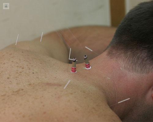 acupuntura para bajar de peso cordoba