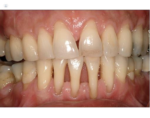 Sintomas de una periodontitis