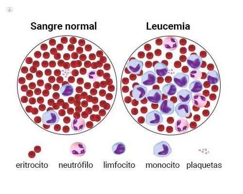 Leucemia: qué es, síntomas, causas, prevención y tratamiento | Top Doctors