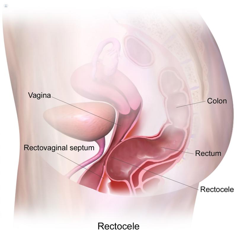 Y causas sintomas rectocele
