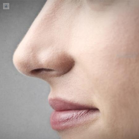 cuidados despues de una cirugia estetica de nariz
