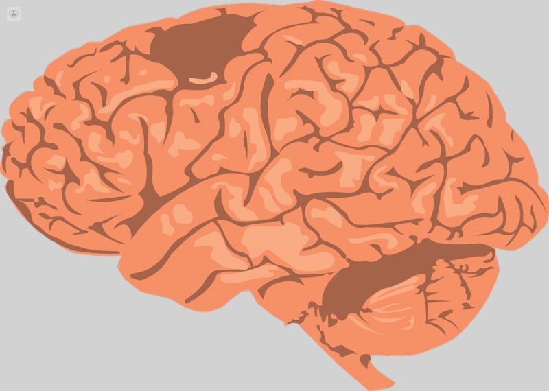 Ventrículos del cerebro agrandados en adultos