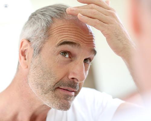 bastante baratas 100% autenticado seleccione para el despacho Pérdida de cabello: cuándo acudir al especialista | Top Doctors