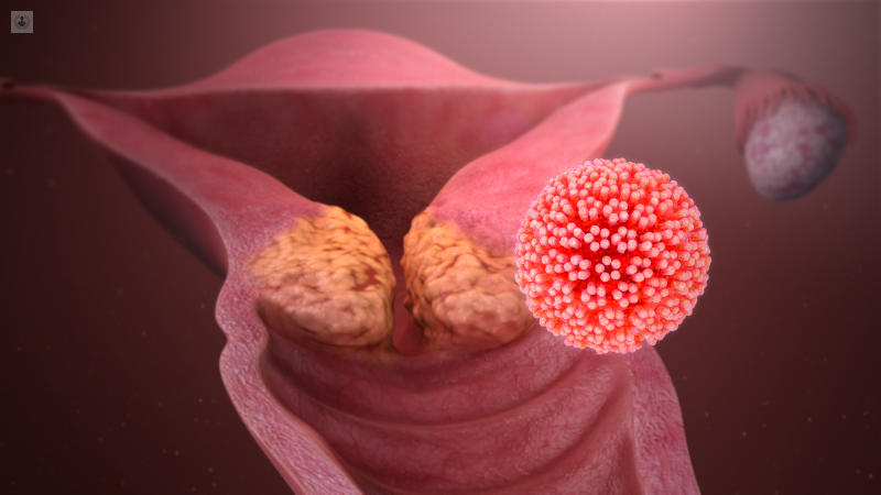 Infectia cu virusul papiloma uman (HPV) | printreoale.ro