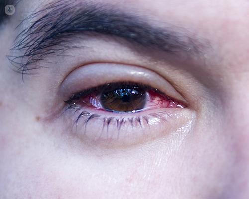 Dolor De Párpados Y Ojos Llorosos Es Blefaritis