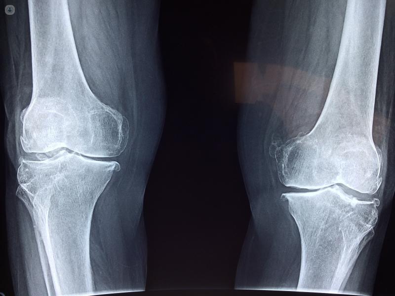 Tumores óseos: qué es, síntomas, causas, prevención y tratamiento ...
