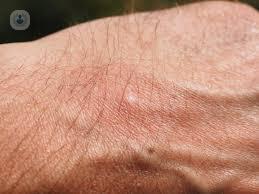 Alergias alimentarias sintomas piel