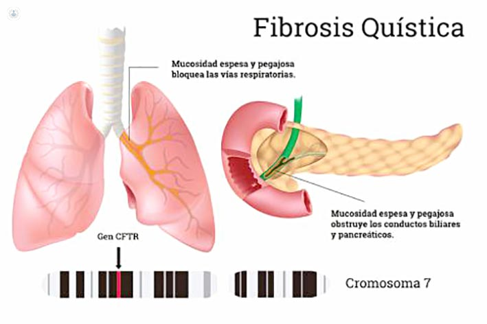 Que es la fibrosis de seno