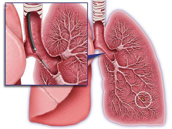 biopsia pulmonar por broncoscopia