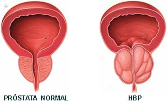 cancer de prostata en hiperplasia prostatica benigna