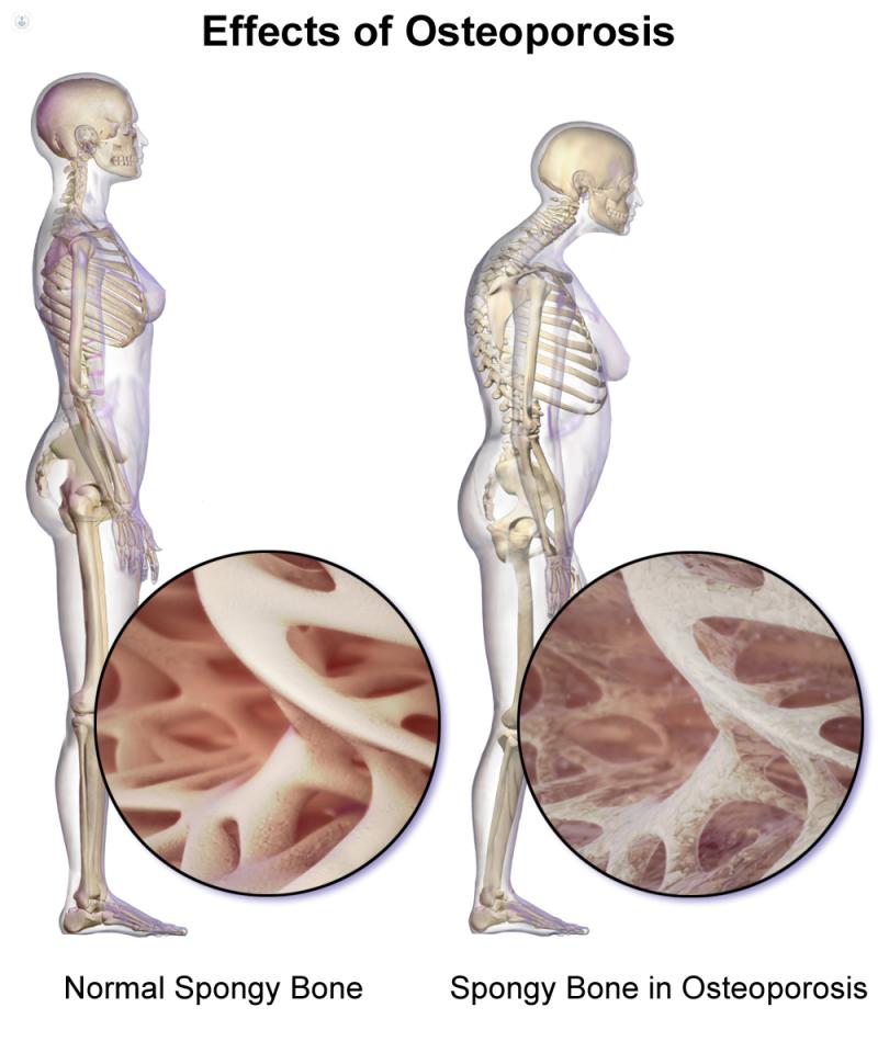 17+ Que especialista trata la osteoporosis information