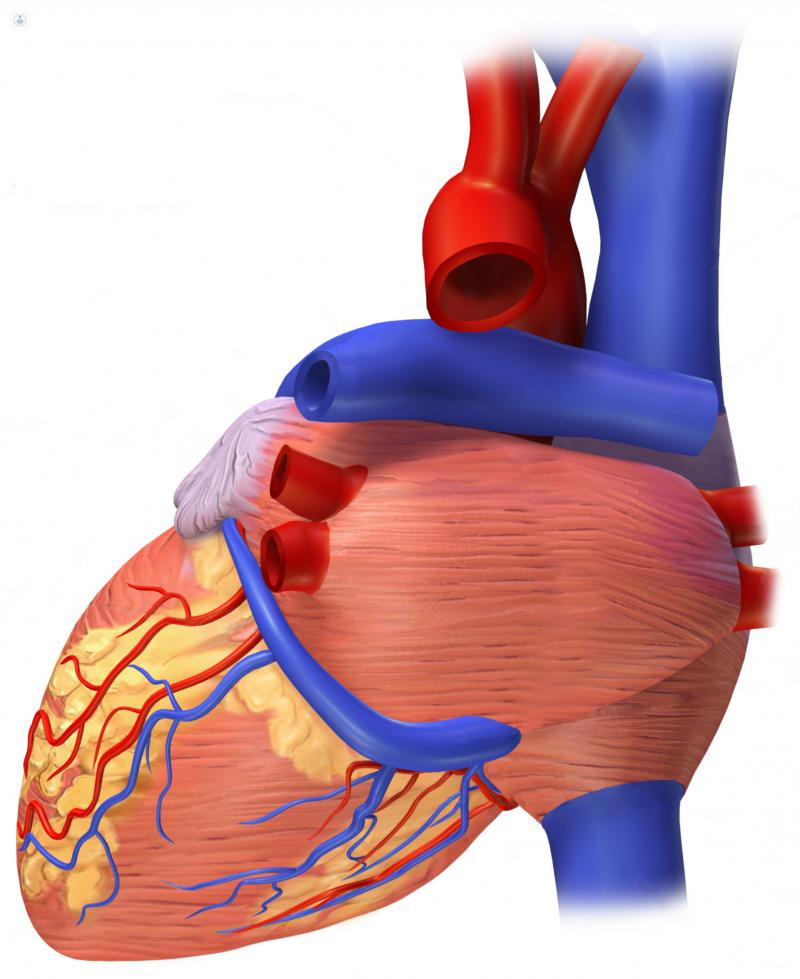 miocarditis que la causa