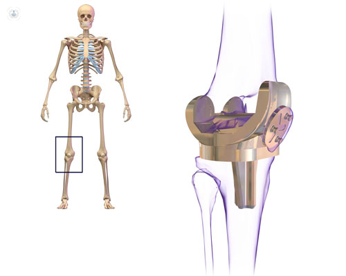 La prótesis de rodilla permite al paciente recuperar la movilidad y estabilidad - Top Doctors