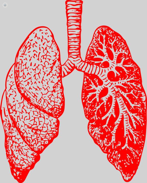 ¿La sarcoidosis causa presión arterial alta?