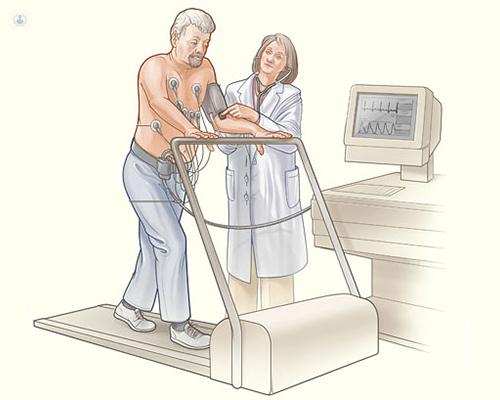 Prueba esfuerzo cardiología deportiva - Top Doctors