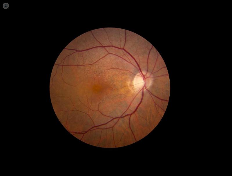 ¿Se puede curar la retinopatía hipertensiva?