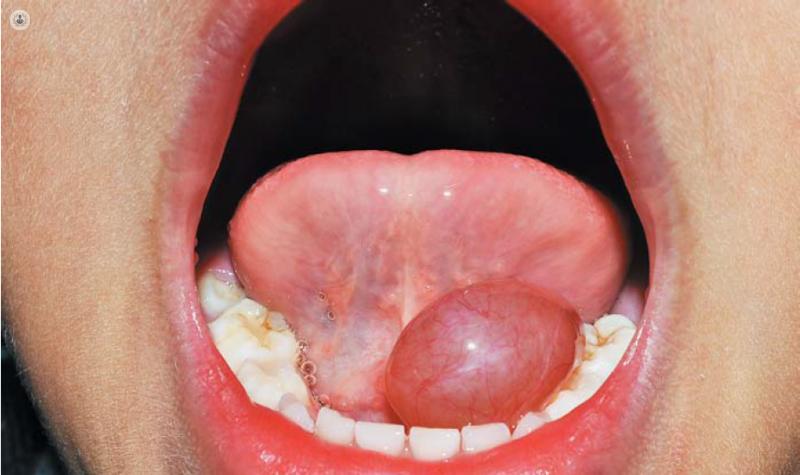 Salival ninos en glandula obstruida