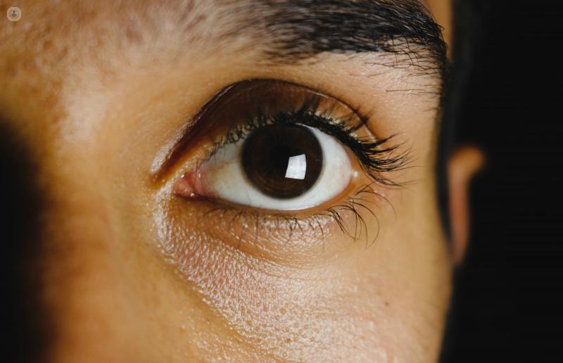 sintomas edema de cornea
