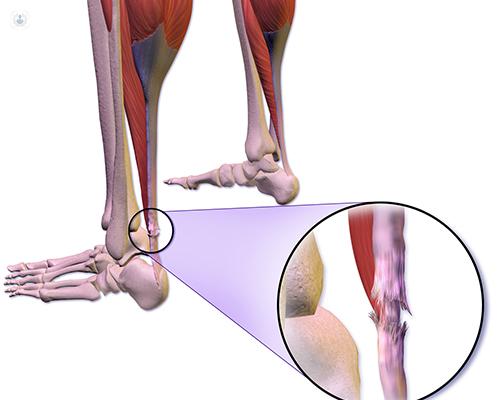 Como se cura la tendinitis del tendon de aquiles