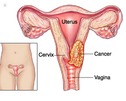 como se hace la biopsia del utero