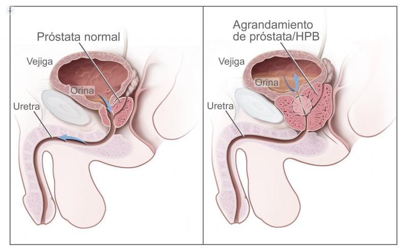 ganglio linfático cervical con afectación del dolor pélvico y dificultad para orinar