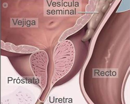cirugía de próstata para orinar