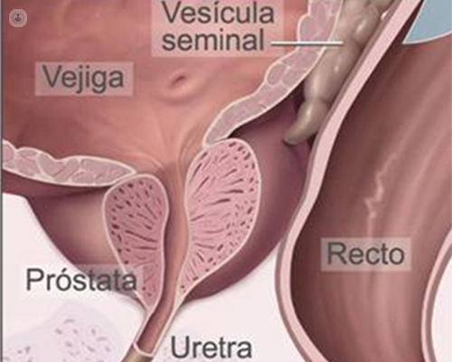 piedras de próstata masculina para hombre