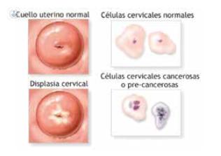 papilom al condilomului cervical
