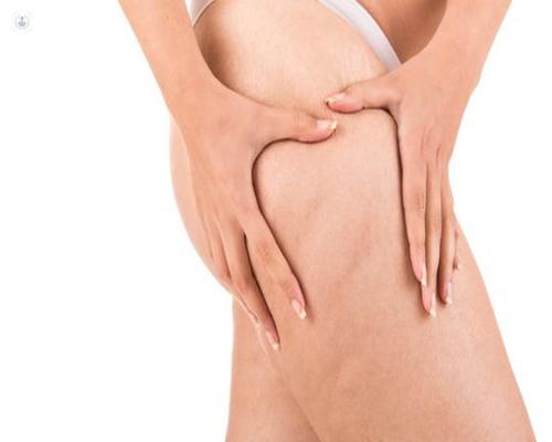 La dermolipectomía permite eliminar la grasa localizada y el exceso de piel - Top Doctors