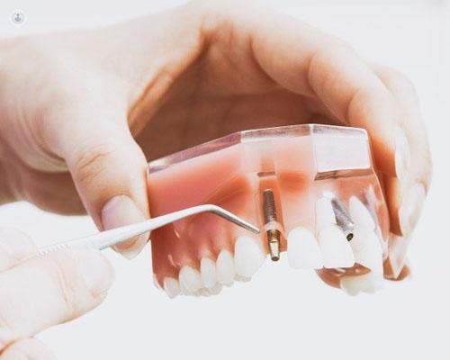 hinchazon cara tras implante dental