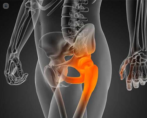 Los problemas del en fémur huesos